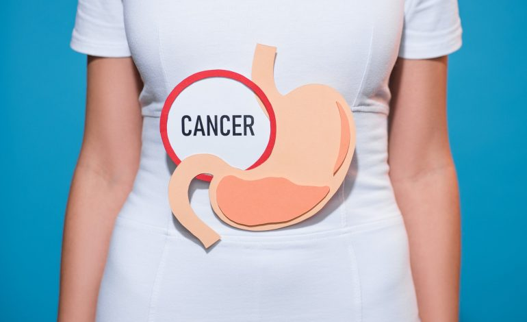 cropped shot of woman with paper crafted stomach and cancer lettering on blue background